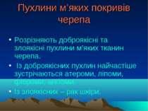 Пухлини м'яких покривів черепа Розрізняють доброякісні та злоякісні пухлини м...
