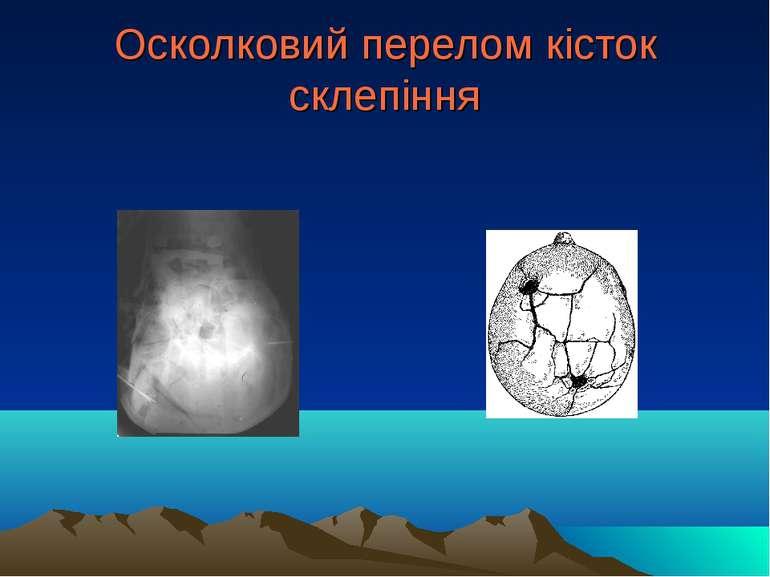 Осколковий перелом кісток склепіння