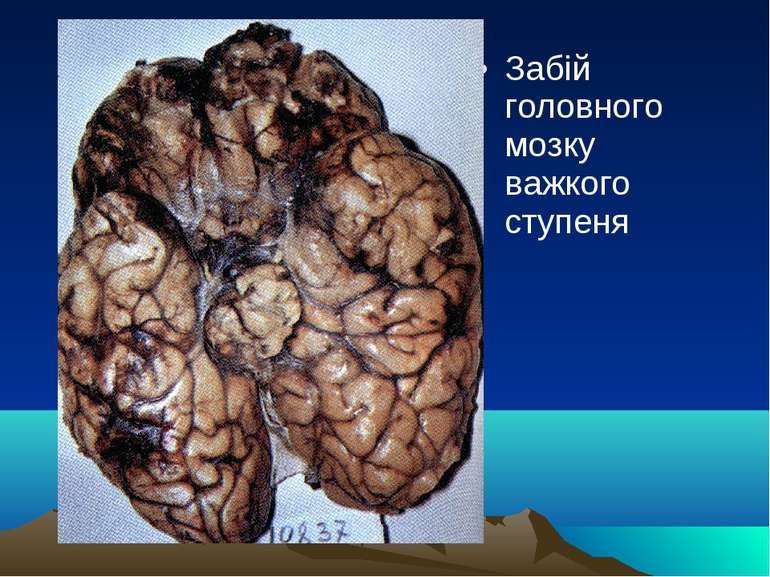 Забій головного мозку важкого ступеня
