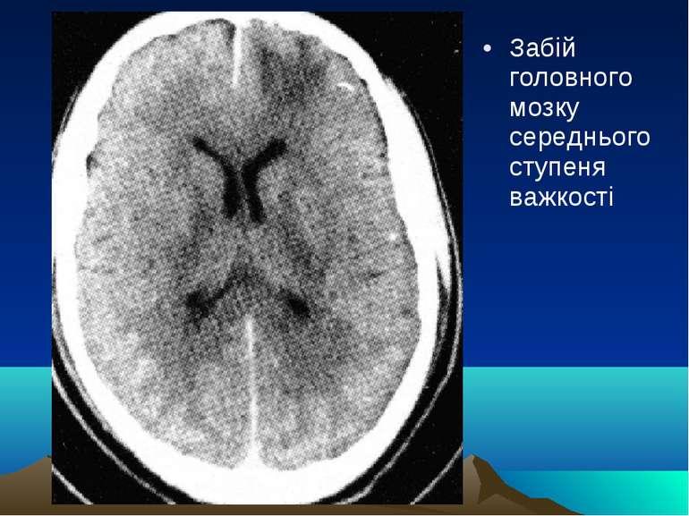 Забій головного мозку середнього ступеня важкості