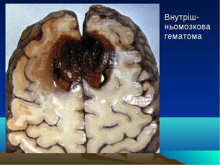 Внутріш-ньомозкова гематома
