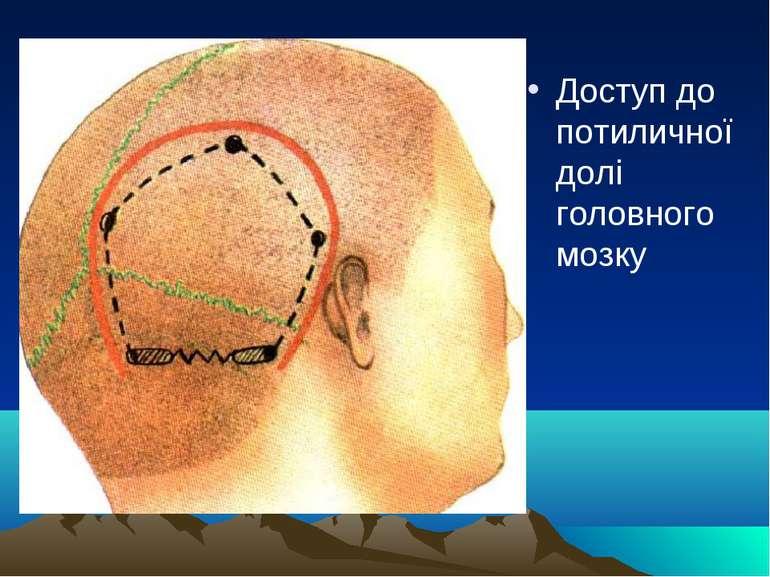 Доступ до потиличної долі головного мозку