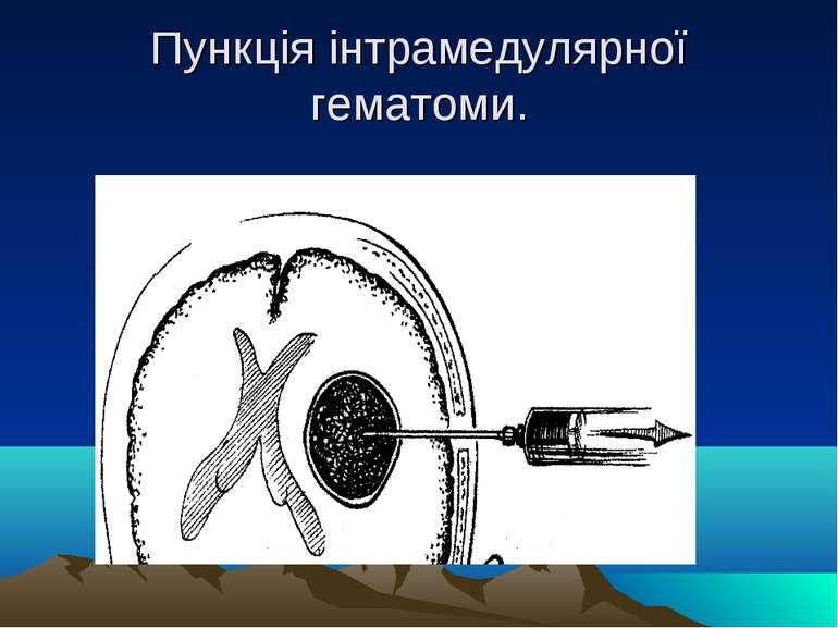 Пункція інтрамедулярної гематоми.