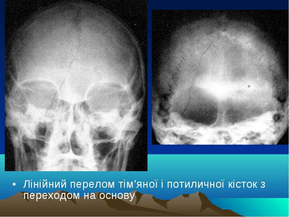 Лінійний перелом тім'яної і потиличної кісток з переходом на основу