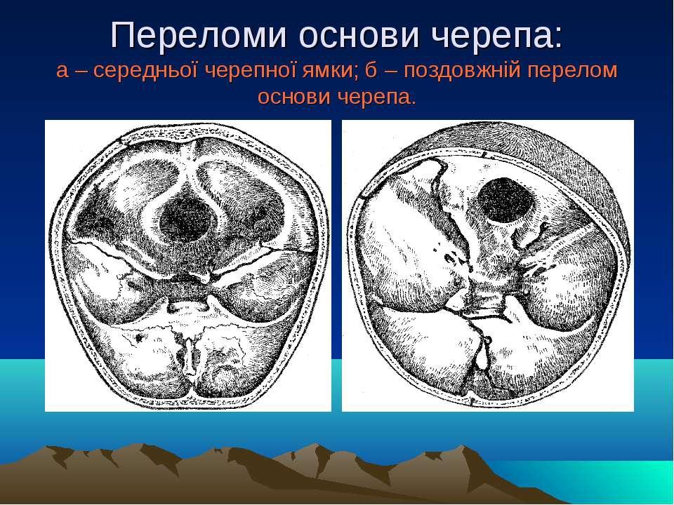 Переломи основи черепа: а – середньої черепної ямки; б – поздовжній перелом о...