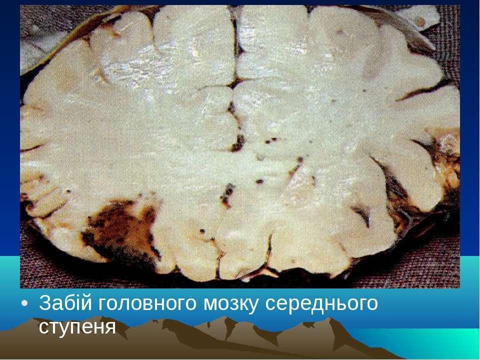 Забій головного мозку середнього ступеня