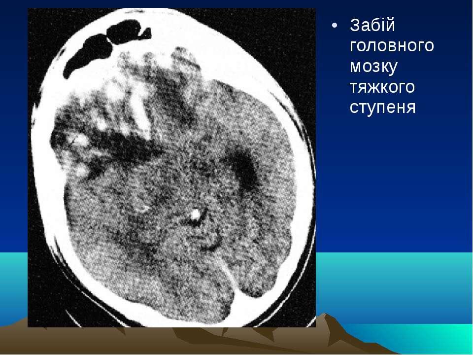Забій головного мозку тяжкого ступеня