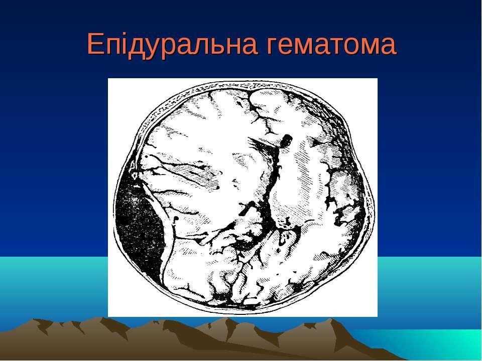Епідуральна гематома