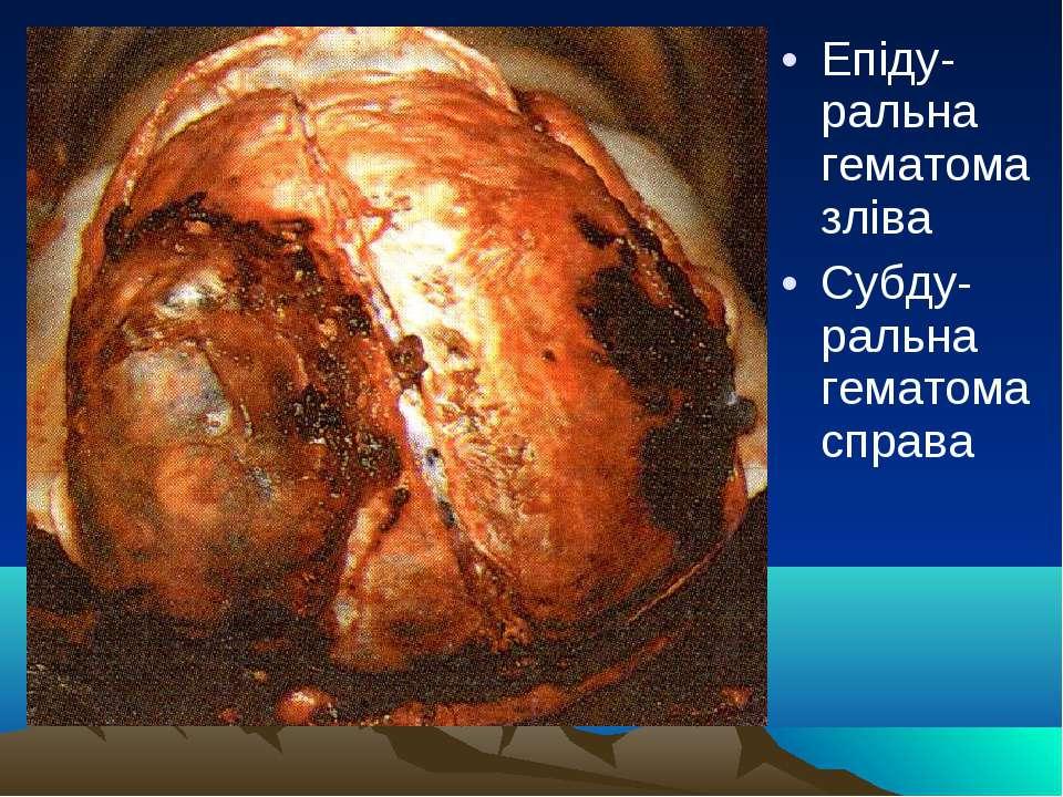 Епіду-ральна гематома зліва Субду-ральна гематома справа