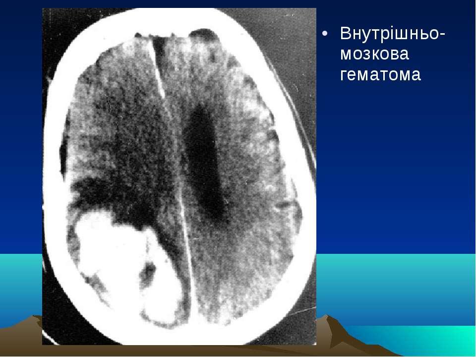 Внутрішньо-мозкова гематома