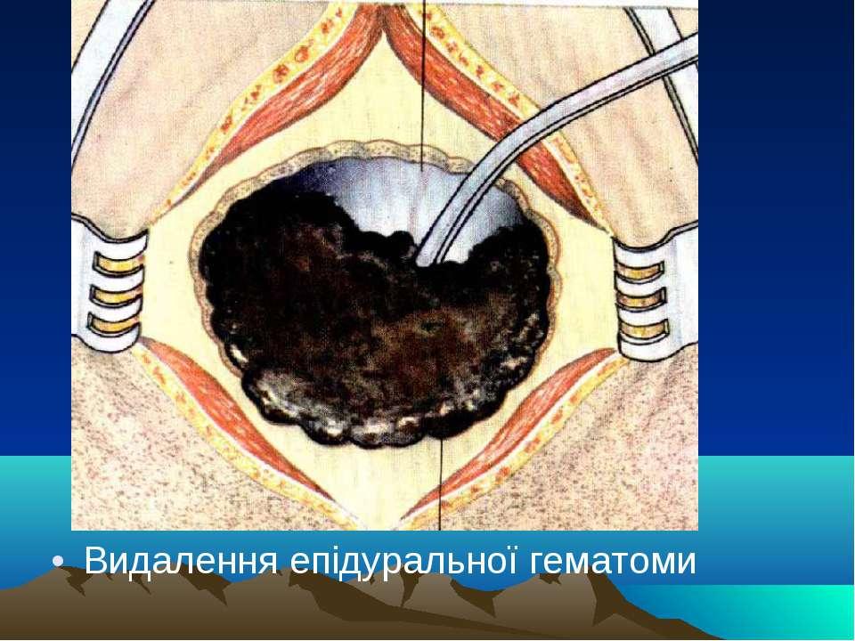 Видалення епідуральної гематоми