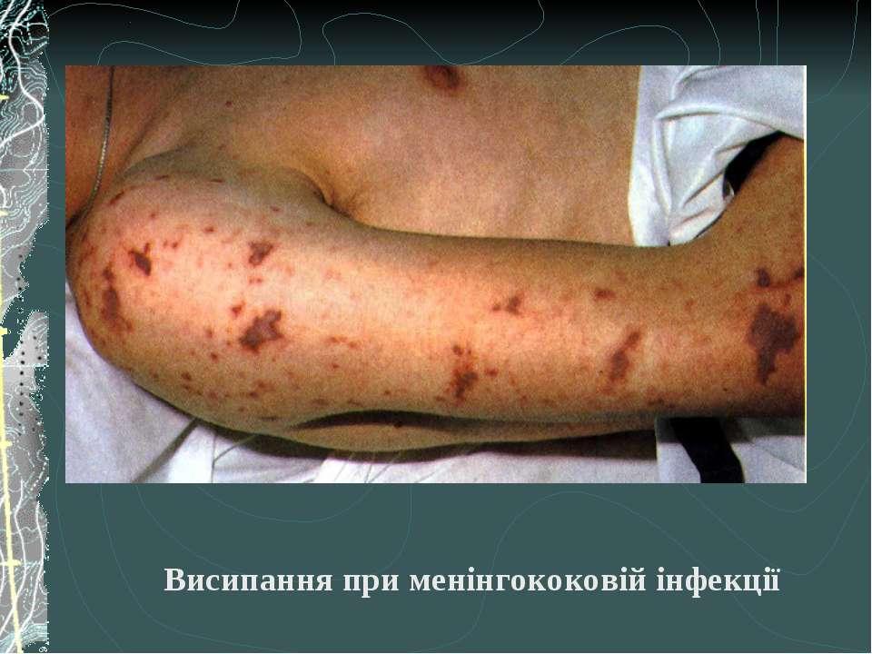 Висипання при менінгококовій інфекції