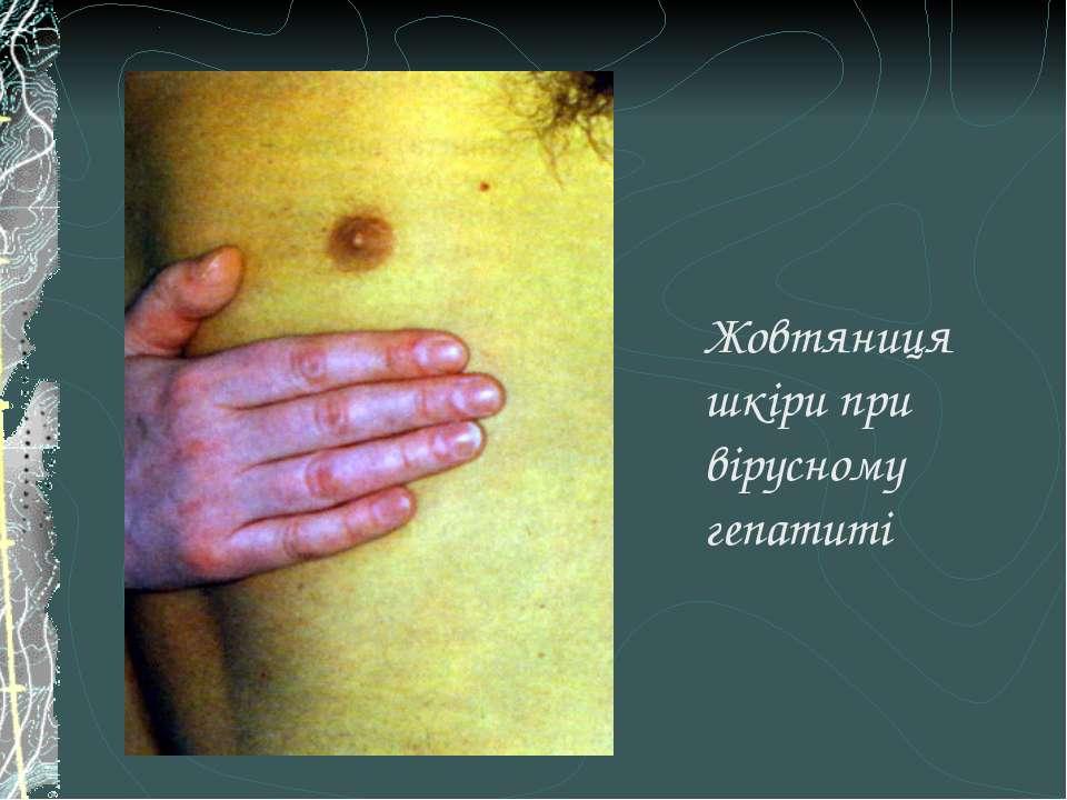 Жовтяниця шкіри при вірусному гепатиті