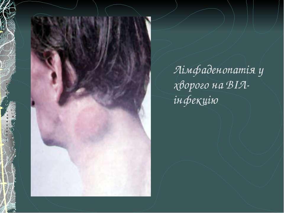 Лімфаденопатія у хворого на ВІЛ-інфекцію