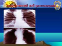 Загруднинний зоб (рентгенограма)