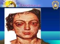 Екзофтальм