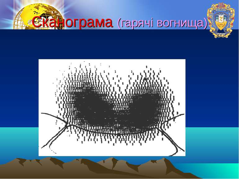 Сканограма (гарячі вогнища)