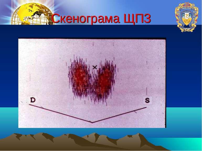 Скенограма ЩПЗ