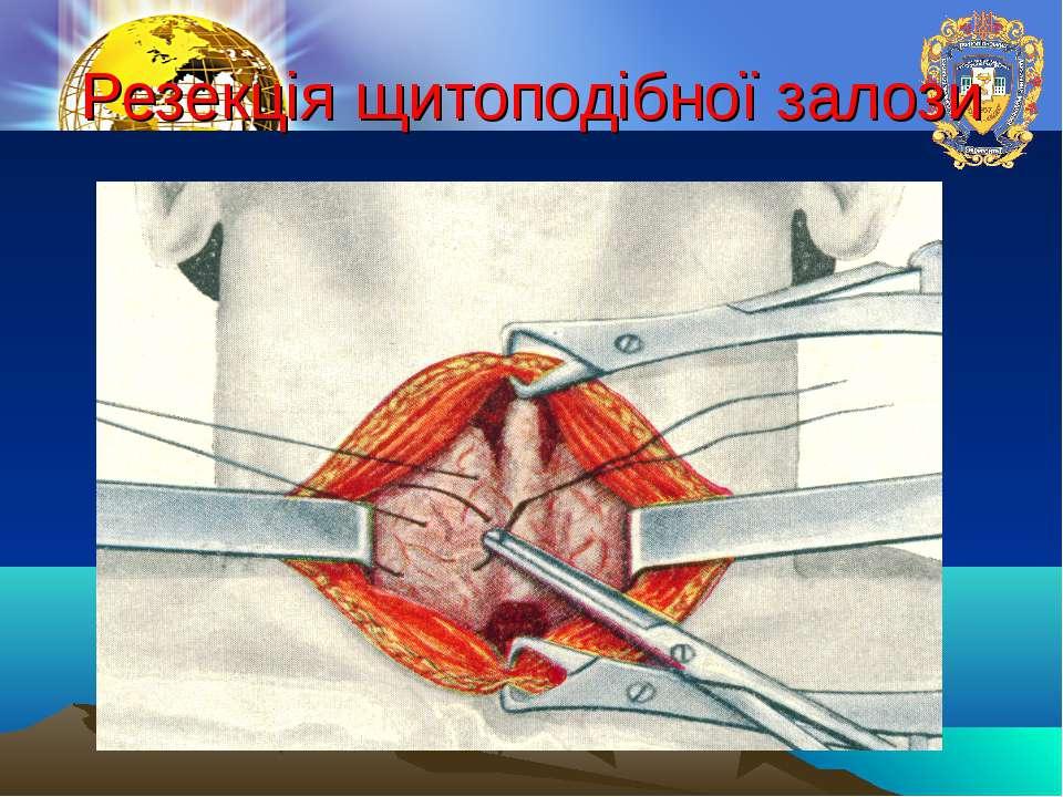 Резекція щитоподібної залози