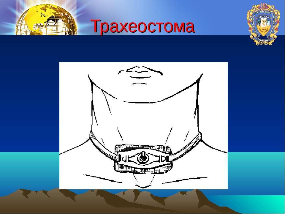 Трахеостома