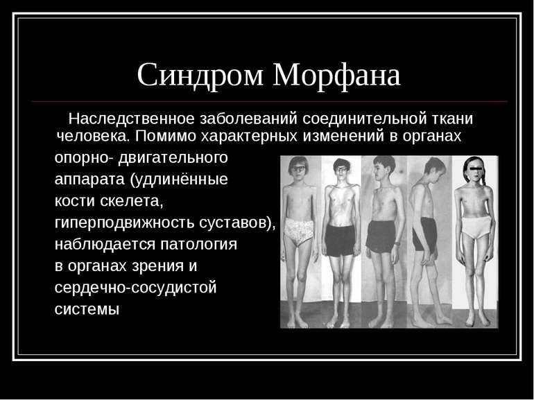 Синдром Морфана Наследственное заболеваний соединительной ткани человека. Пом...