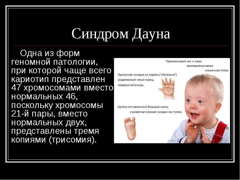 Синдром Дауна Одна из форм геномной патологии, при которой чаще всего кариоти...