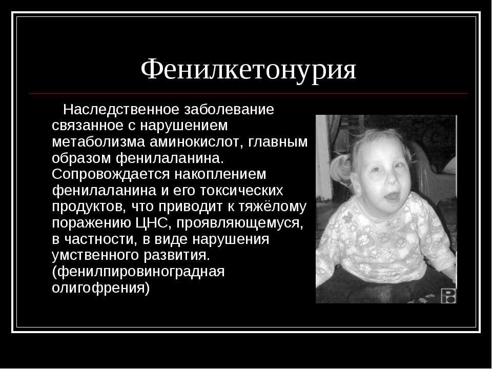 Фенилкетонурия Наследственное заболевание связанное с нарушением метаболизма ...