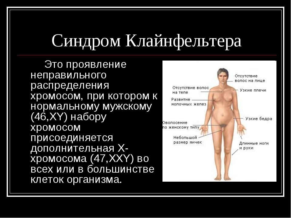 Синдром Клайнфельтера Это проявление неправильного распределения хромосом, пр...