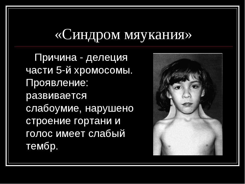 «Синдром мяукания» Причина - делеция части 5-й хромосомы. Проявление: развива...