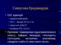 Синусова брадикардія ЕКГ критерії: правильний ритм ЧСС - менше 60 за 1 хв син...