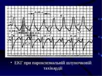 ЕКГ при пароксизмальній шлуночковій тахікардії
