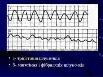 а- тріпотіння шлуночків б- миготіння і фібриляція шлуночків