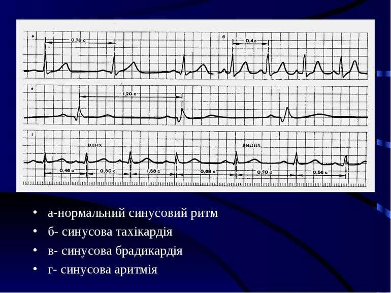 а-нормальний синусовий ритм б- синусова тахікардія в- синусова брадикардія г-...