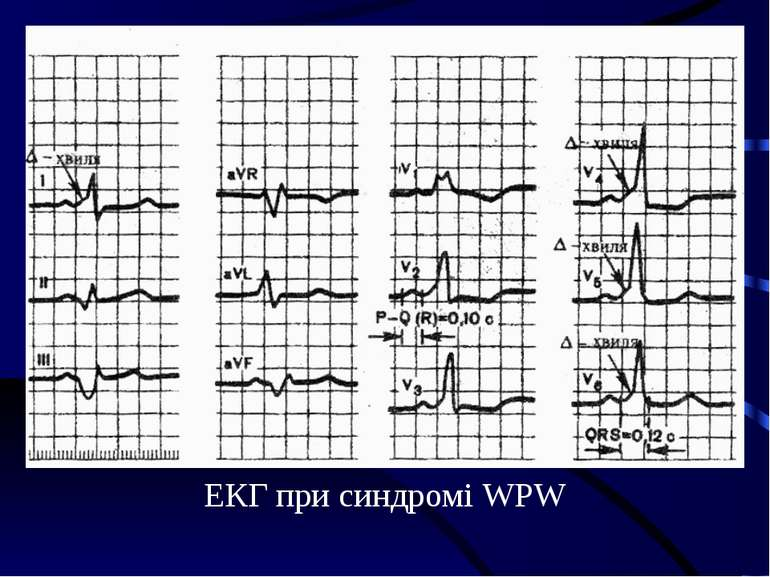 ЕКГ при синдромі WPW