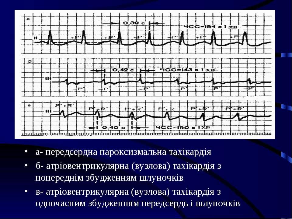 а- передсердна пароксизмальна тахікардія б- атріовентрикулярна (вузлова) тахі...