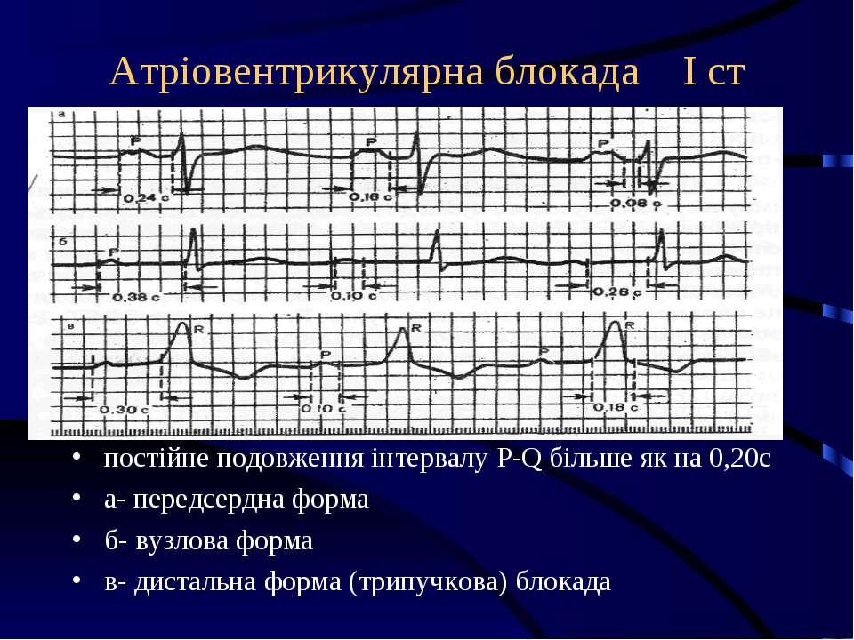 Атріовентрикулярна блокада І ст постійне подовження інтервалу P-Q більше як н...