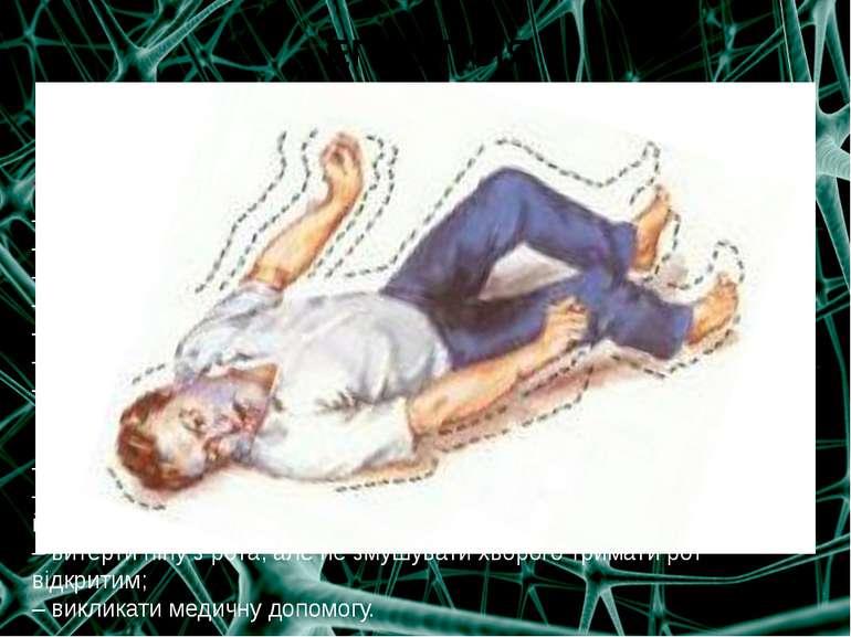 ЕПІЛЕПСІЯ Епілепсієюназивають захворювання нервової системи, що супроводжуєт...