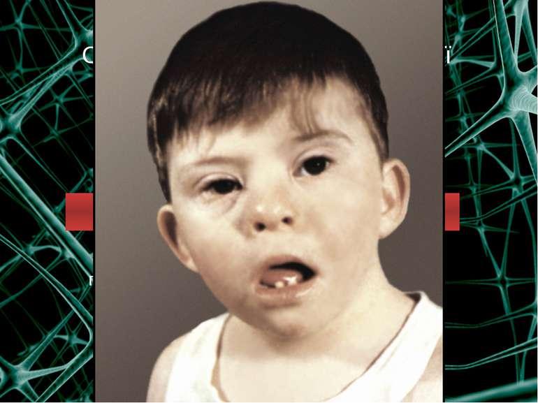 Спадкові захворювання нервової системи Хромосомні Геномні ХВОРОБА ДАУНА пору...