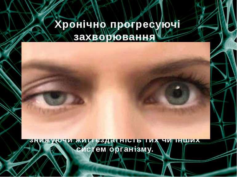Хронічно прогресуючі захворювання  міастенія, склероз і тд Захворювання про...