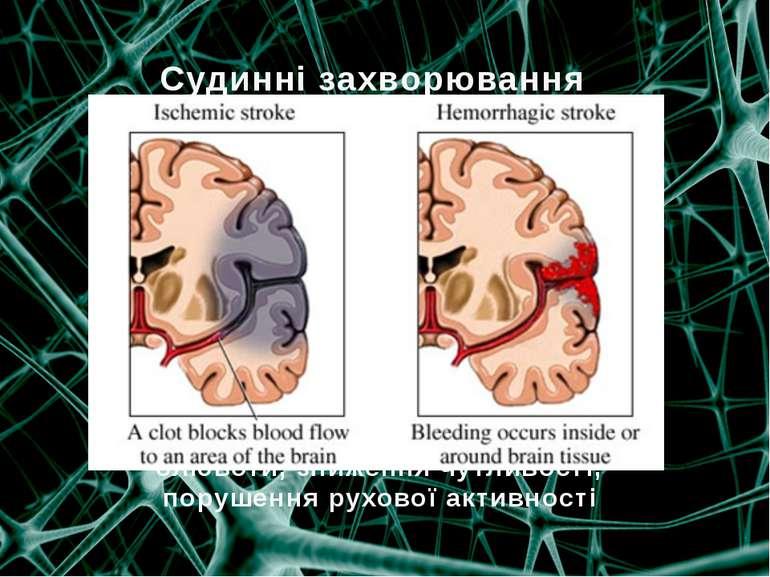Судинні захворювання  порушення мозкового кровообігу, хронічна судинно-мозко...