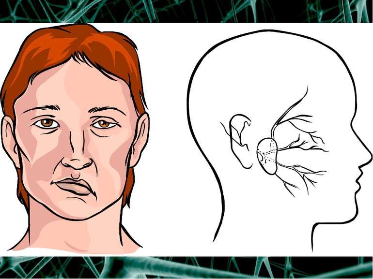 ІНСУЛЬТ Інсульт –це гостре порушення кровообігу в головному або спинному моз...