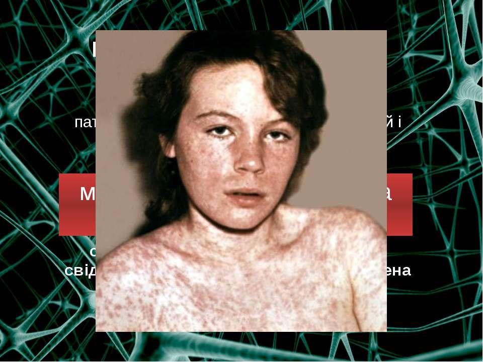 Інфекційні захворювання нервової системи  малярію, енцефаліти, кір та ін си...
