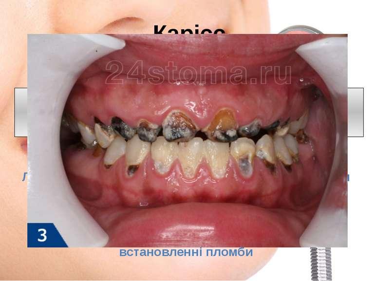 Карієс зміна кольору емалі, зубний біль, підвищена чутливість, на більш глиб...