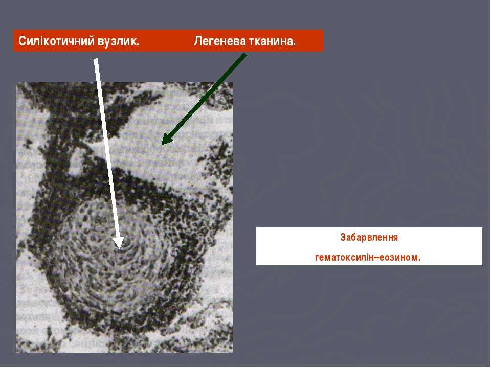 Силікотичний вузлик. Забарвлення гематоксилін–еозином. Легенева тканина.