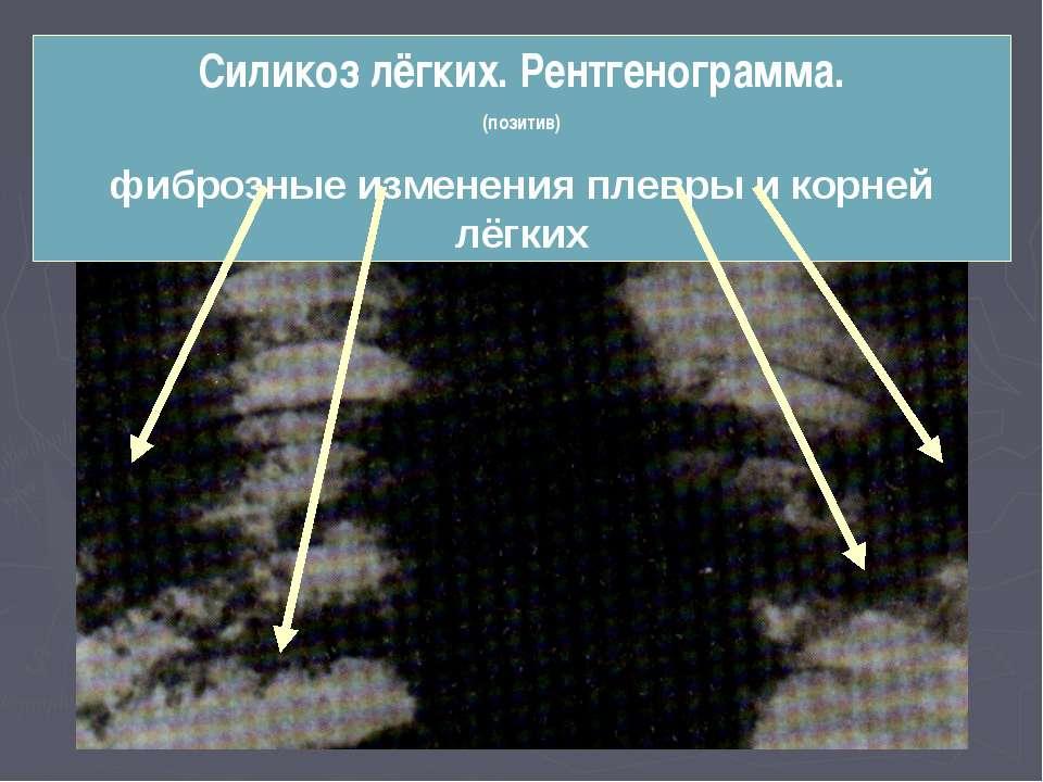 Силикоз лёгких. Рентгенограмма. (позитив) фиброзные изменения плевры и корней...