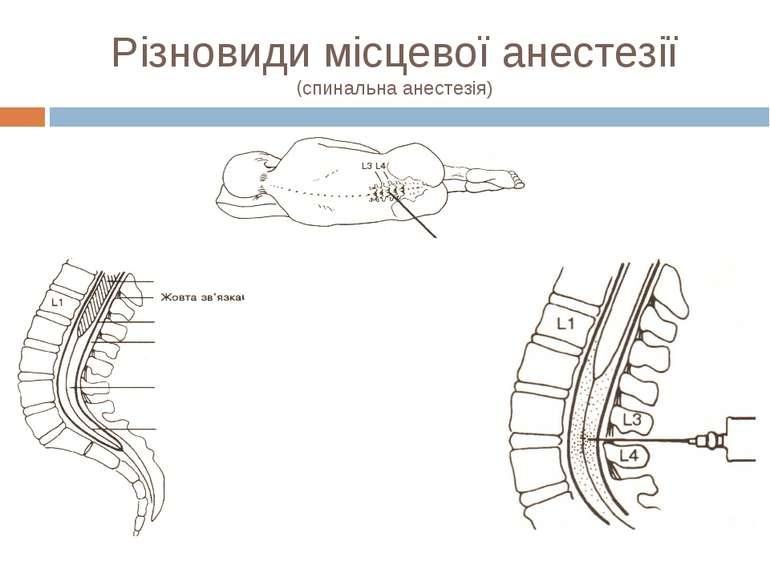 Різновиди місцевої анестезії (спинальна анестезія)