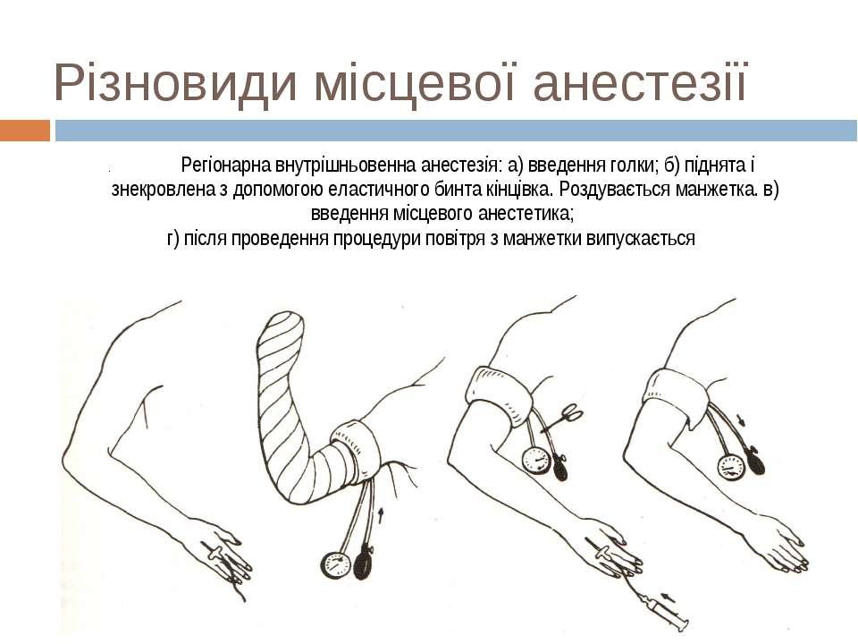 Різновиди місцевої анестезії . Регіонарна внутрішньовенна анестезія: а) введе...