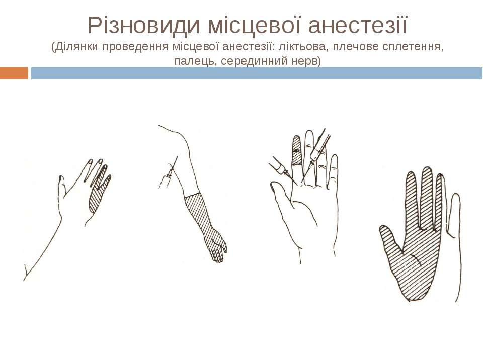 Різновиди місцевої анестезії (Ділянки проведення місцевої анестезії: ліктьова...