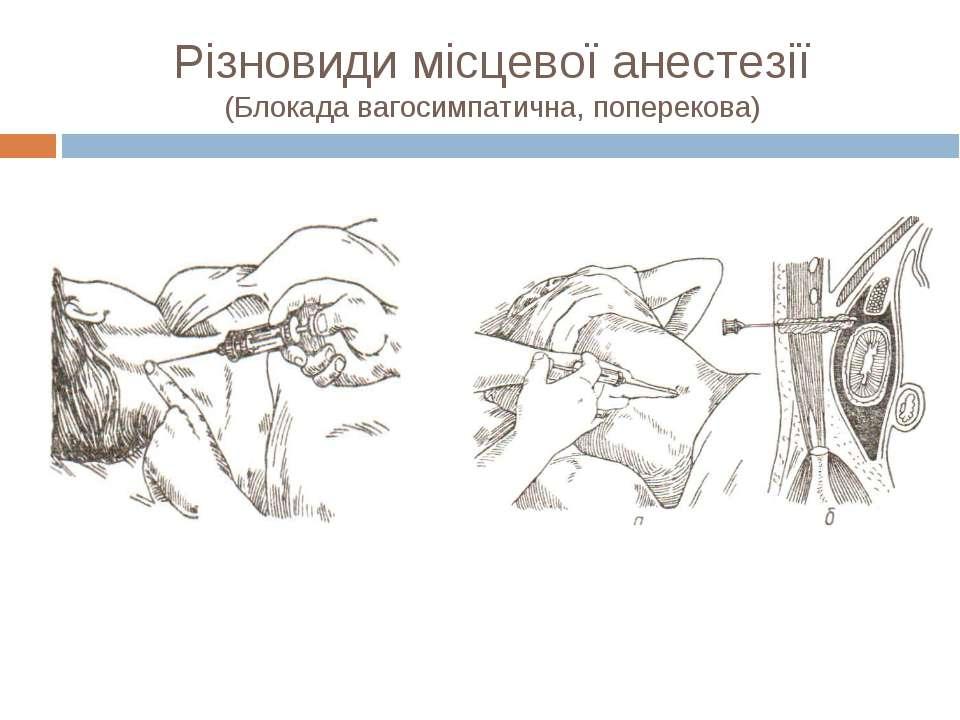 Різновиди місцевої анестезії (Блокада вагосимпатична, поперекова)