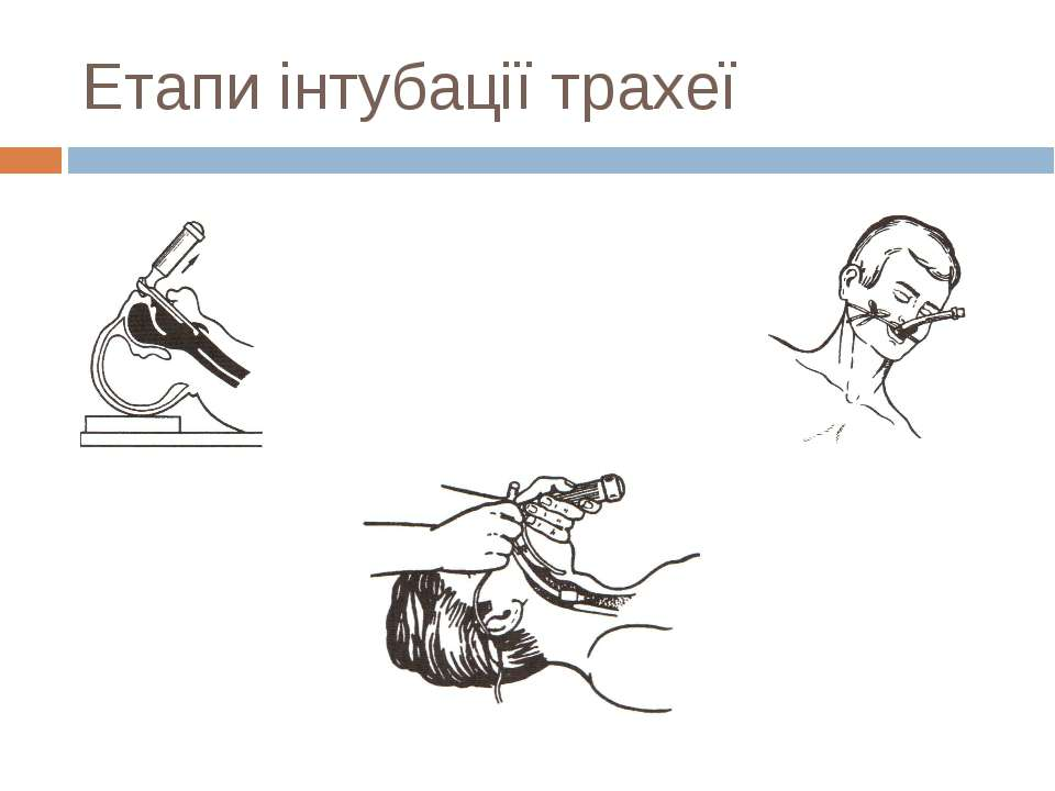 Етапи інтубації трахеї